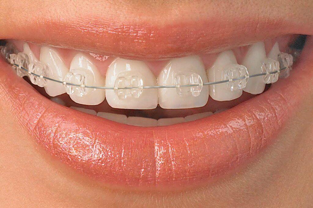 ceramic braces, How Are Ceramic Braces Put On?