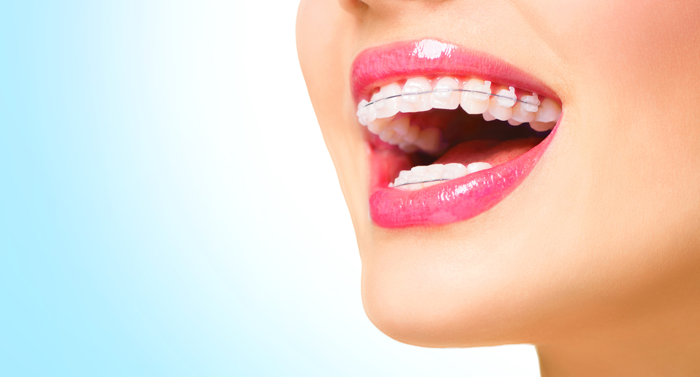 Maintaining Fresh Breath with Braces